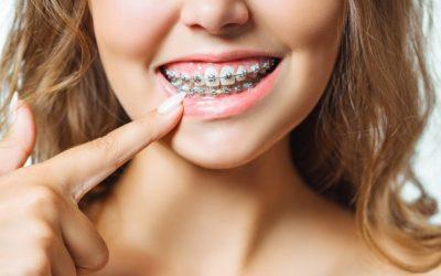 Ocho consejos fundamentales para cuidar tus dientes