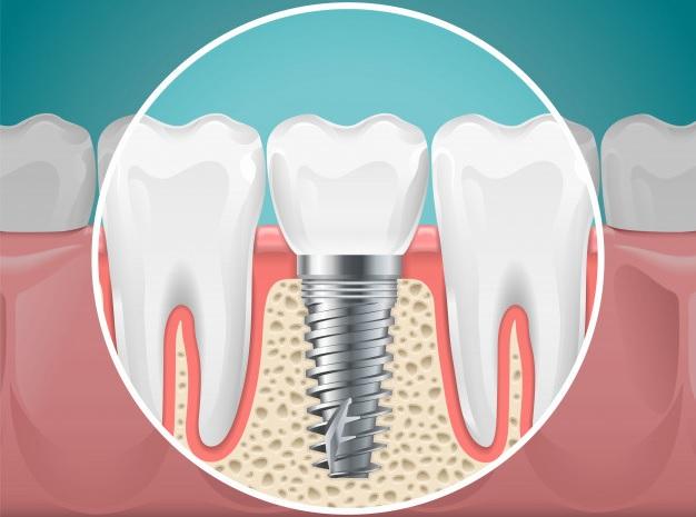 La importancia de los implantes dentales